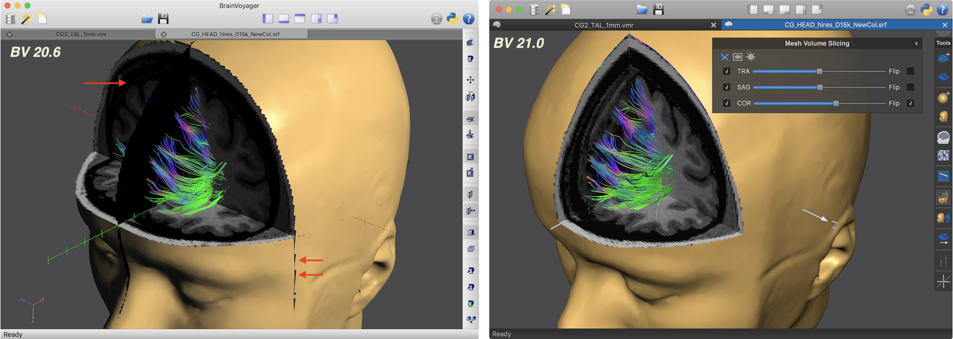BrainVoyager 21 - BIDS, Defacing, 3D Viewer and Dark Mode