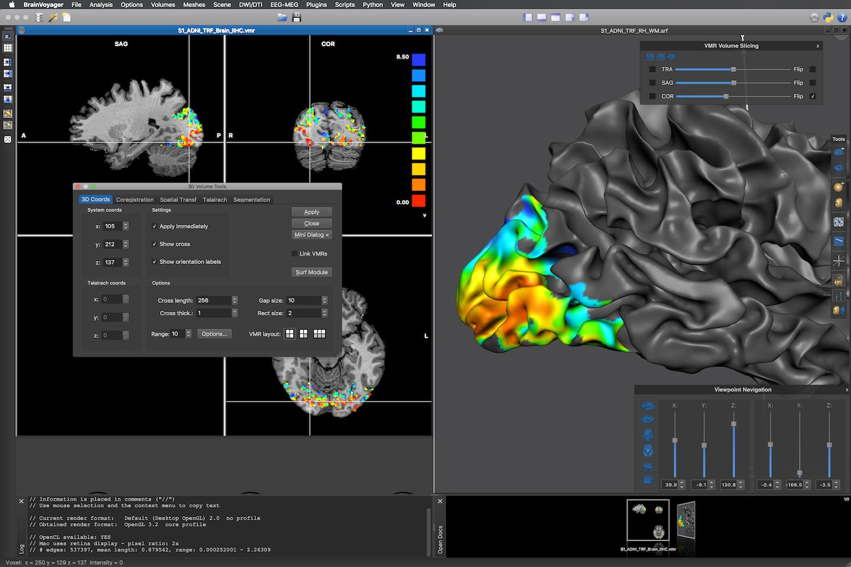 Brain Innovation - Home